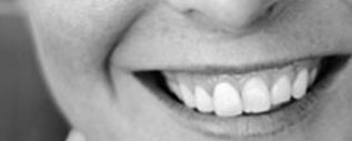 Image of a ladies smile